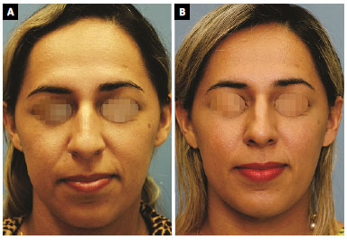 RBCP - Perception of nasal reduction by radix and tip augmentation